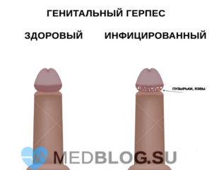 Герпес 2 типа - генитальный