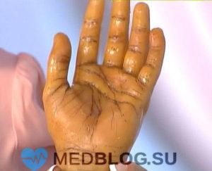 Болезнь Аддисона (гипокортицизм) статья о лечении