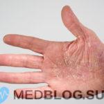 Атопический дерматит фото, симптомы, лечение