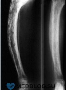 Поражение костей при врожденном сифилисе