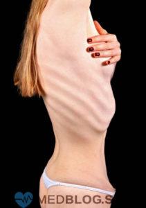 Нервная анорексия фото 2