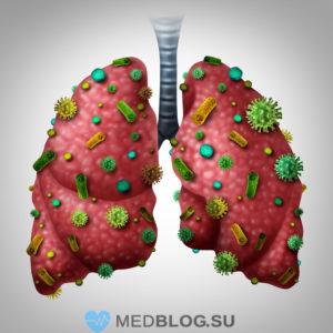 Боль в правом боку при пневмонии