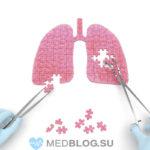 Болит правый бок под ребрами при пневмонии