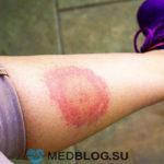 Болезнь Лайма - основной симптом эритема