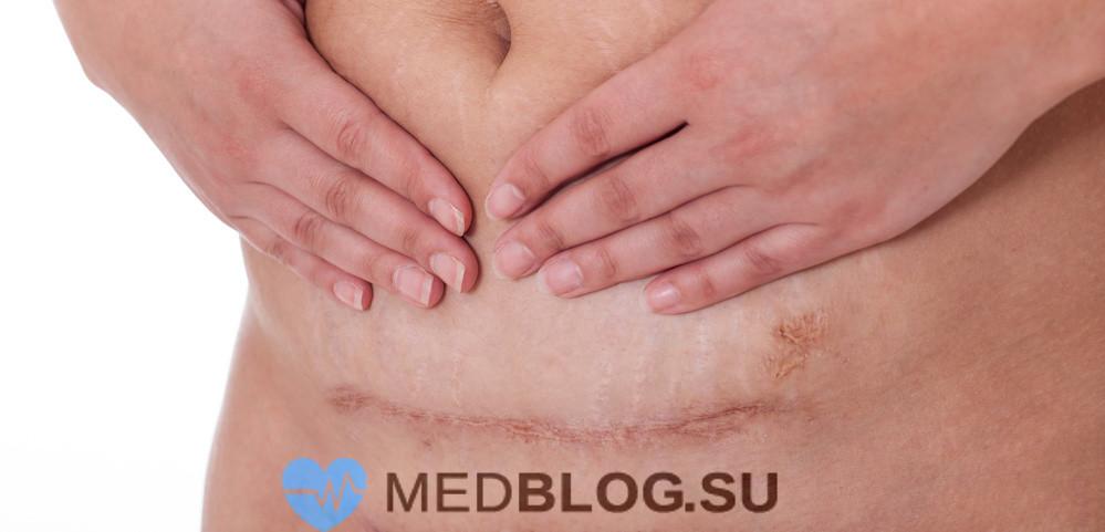 Воспаление шва и матки после кесарева сечения
