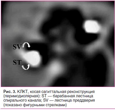 Рис. 3. КЛКТ, косая сагиттальная реконструкция (перимодиолярная): ST — барабанная лестница спирального канала; SV — лестница преддверия (показано фигурными стрелками)