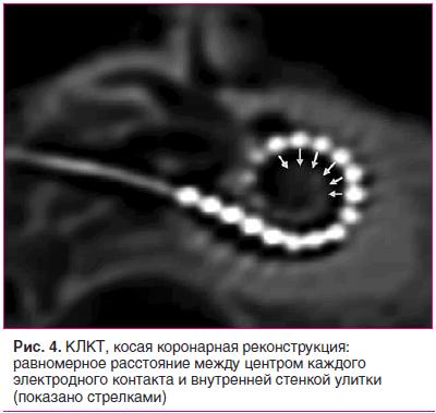 Рис. 4. КЛКТ, косая коронарная реконструкция: равномерное расстояние между центром каждого электродного контакта и внутренней стенкой улитки (показано стрелками)
