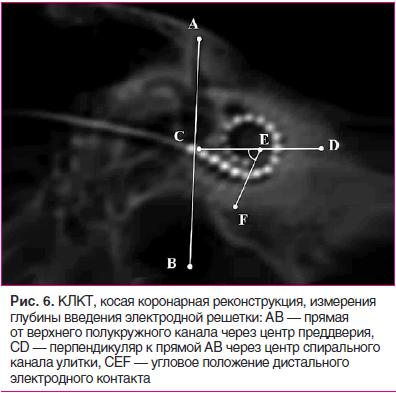 Рис. 6. КЛКТ, косая коронарная реконструкция, измерения глубины введения электродной решетки: AB — прямая от верхнего полукружного канала через центр преддверия, CD — перпендикуляр к прямой AB через центр спирального канала улитки, CEF — угловое положение