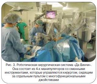 Рис. 3. Роботическая хирургическая система «Да Винчи».