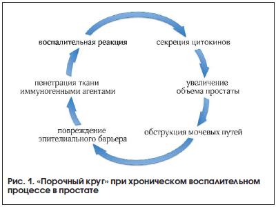 Рис. 1. «Порочный круг» при хроническом воспалительном процессе в простате