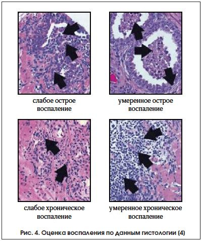 Рис. 4. Оценка воспаления по данным гистологии [4]