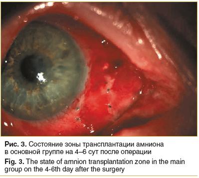 Рис. 3. Состояние зоны трансплантации амниона в основной группе на 4–6 сут после операции