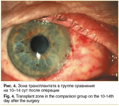 Рис. 4. Зона трансплантата в группе сравнения на 10–14 сут после операции