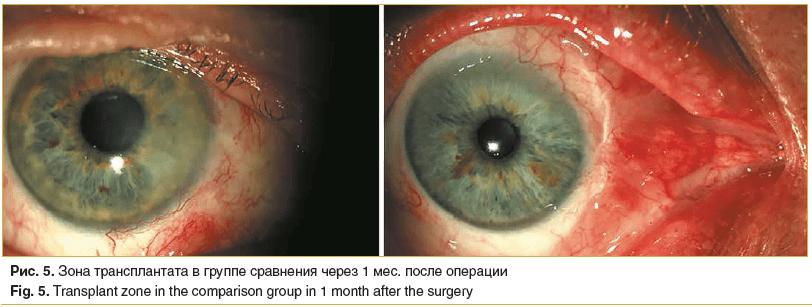 Рис. 5. Зона трансплантата в группе сравнения через 1 мес. после операции