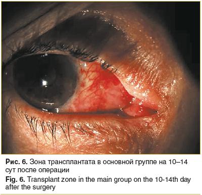 Рис. 6. Зона трансплантата в основной группе на 10–14 сут после операции