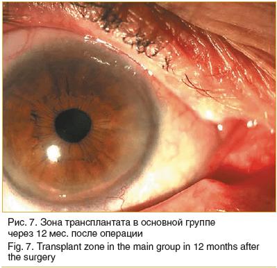 Рис. 7. Зона трансплантата в основной группе через 12 мес. после операции