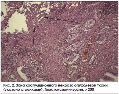 Рис. 2. Зона коагуляционного некроза опухолевой ткани (указано стрелками). Гематоксилин-эозин, ×200