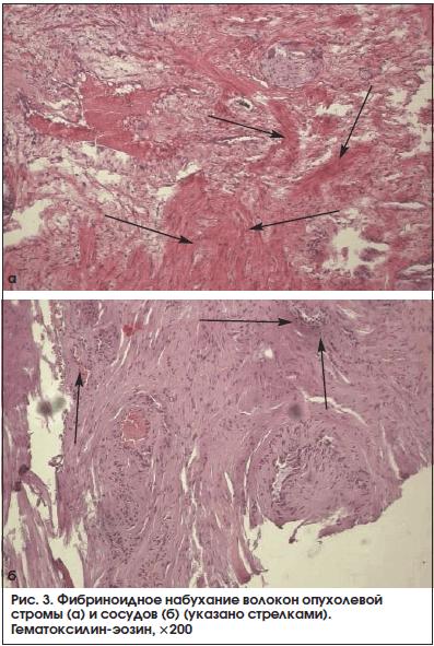 Рис. 3. Фибриноидное набухание волокон опухолевой стромы (а) и сосудов (б) (указано стрелками). Гематоксилин-эозин, ×200