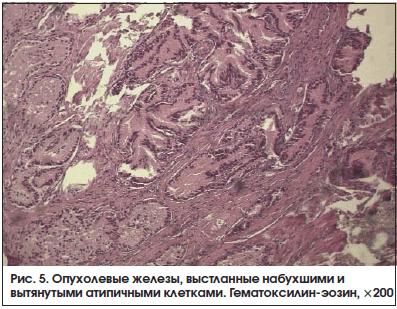 Рис. 5. Опухолевые железы, выстланные набухшими и вытянутыми атипичными клетками. Гематоксилин-эозин, ×200