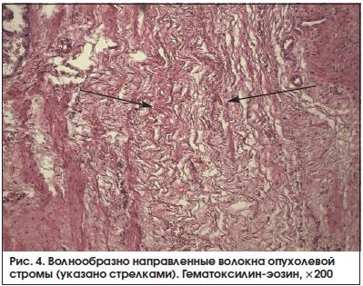 Рис. 4. Волнообразно направленные волокна опухолевой стромы (указано стрелками). Гематоксилин-эозин, ×200
