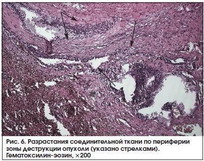 Рис. 6. Разрастания соединительной ткани по периферии зоны деструкции опухоли (указано стрелками). Гематоксилин-эозин, ×200