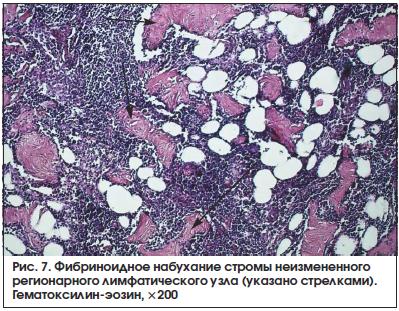 Рис. 7. Фибриноидное набухание стромы неизмененного регионарного лимфатического узла (указано стрелками). Гематоксилин-эозин, ×200
