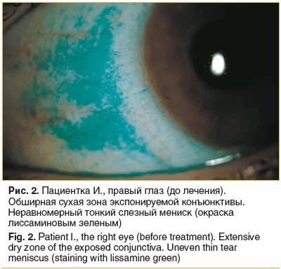 Рис. 2. Пациентка И., правый глаз (до лечения). Обширная сухая зона экспонируемой конъюнктивы. Неравномерный тонкий слезный мениск (окраска лиссаминовым зеленым)
