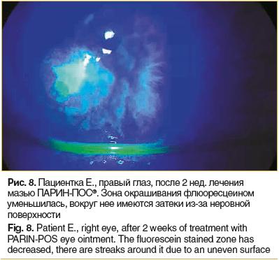 Рис. 8. Пациентка Е., правый глаз, после 2 нед. лечения мазью ПАРИН-ПОС®. Зона окрашивания флюоресцеином уменьшилась, вокруг нее имеются затеки из-за неровной поверхности
