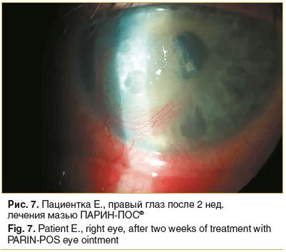 Рис. 7. Пациентка Е., правый глаз после 2 нед. лечения мазью ПАРИН-ПОС®