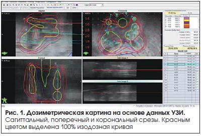 Рис. 1. Дозиметрическая картина на основе данных УЗИ.
