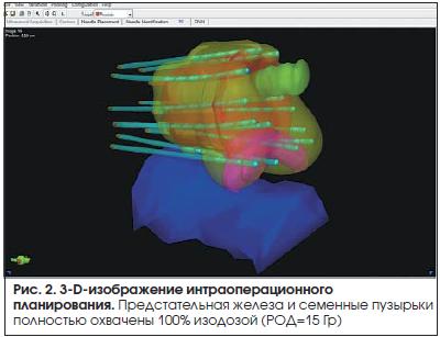 Рис. 2. 3-D-изображение интраоперационного планирования.