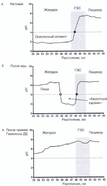Рис. 2. Нейтрализация «кислотного кармана» на фоне приема Гевискона ДД: а - натощак; б - через 20 мин после приема пищи с высоким содержанием жира; в - через 20 мин после приема Гевискона ДД [10]