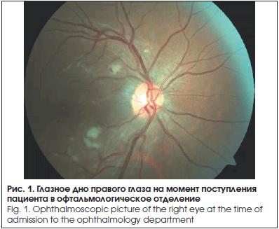 Глазное дно правого глаза на момент поступления пациента в офтальмологическое отделение