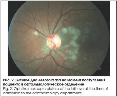 Глазное дно левого глаза на момент поступления пациента в офтальмологическое отделение