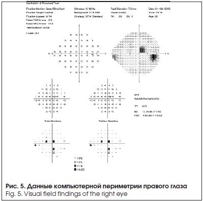 Данные компьютерной периметрии правого глаза