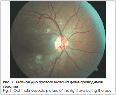 Глазное дно правого глаза на фоне проводимой терапии