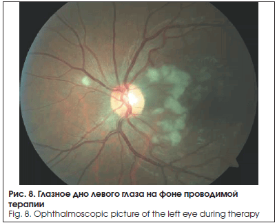 Глазное дно левого глаза на фоне проводимой терапии