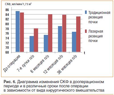 Рис. 6. Диаграмма изменения СКФ в дооперационном периоде и в различные сроки после операции в зависимости от вида хирургического вмешательства