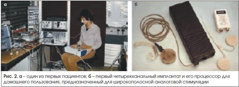 Рис. 2. a – один из первых пациентов; б – первый четырехканальный имплантат и его процессор для домашнего пользования, предназначенный для широкополосной аналоговой стимуляции