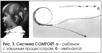 Рис. 3. Система COMFORT