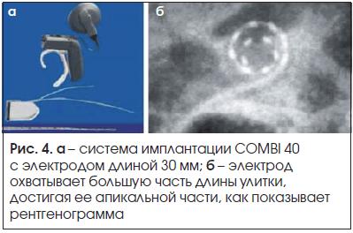 Рис. 4. а – система имплантации COMBI 40 с электродом длиной 30 мм; б – электрод охватывает большую часть длины улитки, достигая ее апикальной части, как показывает рентгенограмма