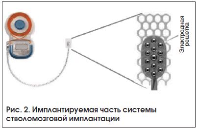 Рис. 2. Имплантируемая часть системы стволомозговой имплантации