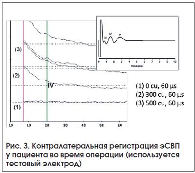 Рис. 3. Контралатеральная регистрация эСВП у пациента во время операции (используется тестовый электрод)