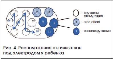 Рис. 4. Расположение активных зон под электродом у ребенка