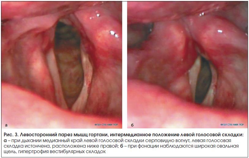 Рис. 3. Левосторонний парез мышц гортани, интермедианное положение левой голосовой складки