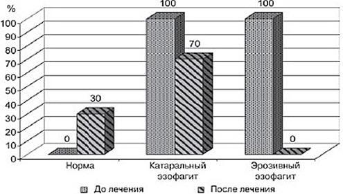 Рис. 2. Динамика эндоскопических показателей (изменения в пищеводе) у больных с ГЭРБ на фоне лечения суспензией Гавискон форте. По оси абсцисс-изменения СО пищевода, по оси ординат - процент пациентов