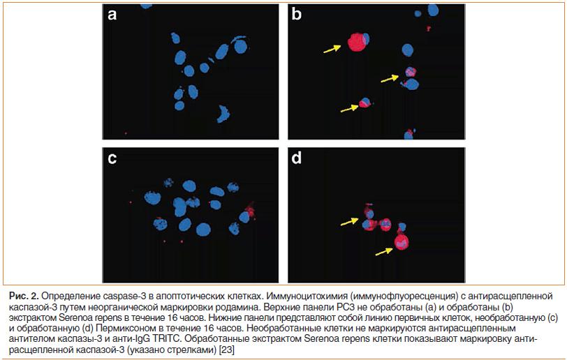 Рис. 2. Определение caspase-3 в апоптотических клетках.