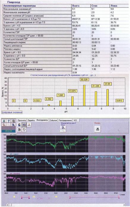 Рис. 4. Результат рН-метрии больной Ф., 43 года