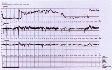 Рис. 4. Суточная рН-метрия пациента А. на фоне приема препарата Омез® ИНСТА