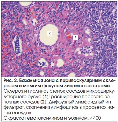Рис. 2. Базальная зона с периваскулярным склерозом и мелким фокусом липоматоза стромы.